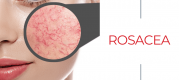 What is rosacea?
